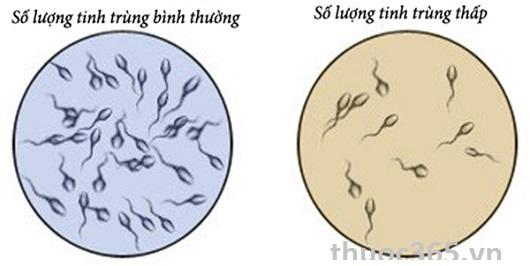 Bảng 2: Đánh giá số lượng tinh trùng trong tinh dịch