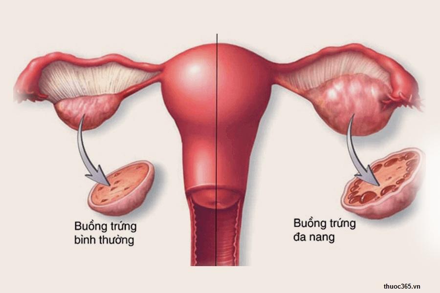 Hình ảnh 3: Thuốc profertil sử dụng cho bệnh nhân buồng trứng đa nang