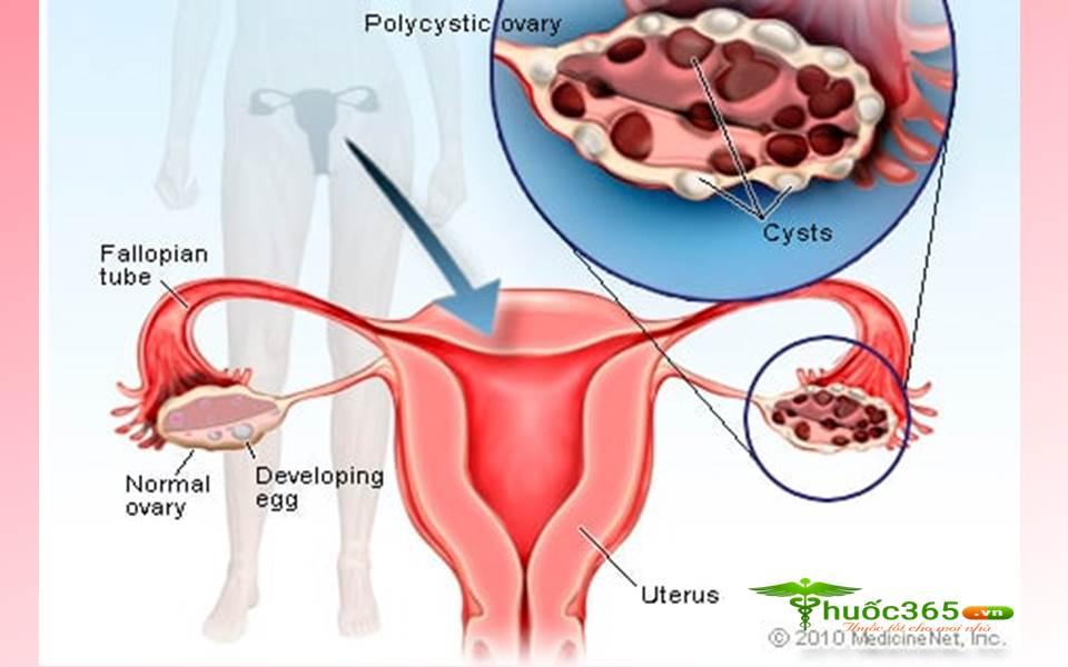 thuốc OVACEPTIL trị buồng trứng đa nang