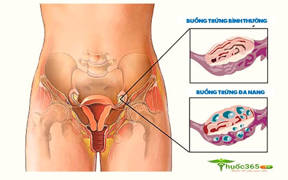 thuốc Endokirogen có tác dụng gì